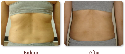 Before and After Treatment Back