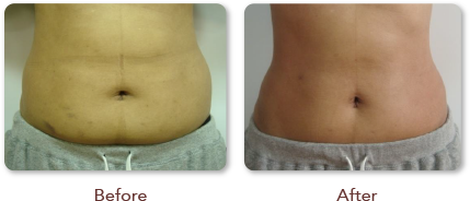 Before and After Treatment Tummy