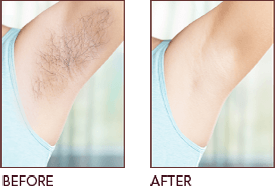 Before and after the Hair Removal treatment